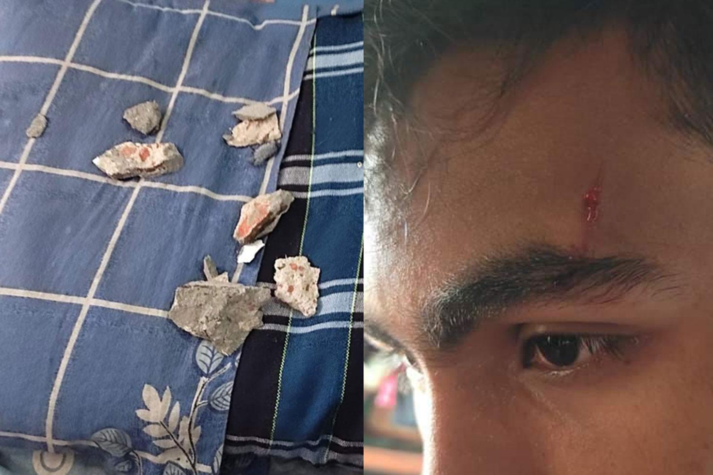 হলের ছাদের পলেস্তারায় ঢাবি শিক্ষার্থী আহত